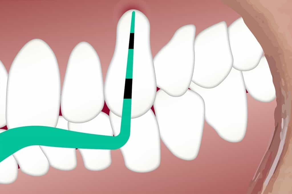 שן בטיפול