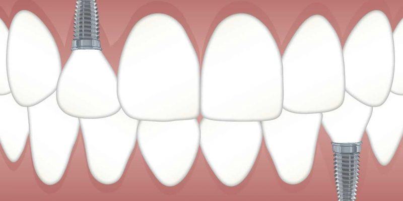 ברגים בשיניים