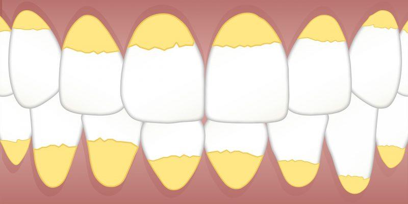 שיניים לא נקיות