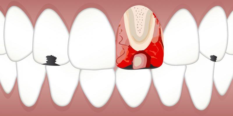 שיניים עם כתמים