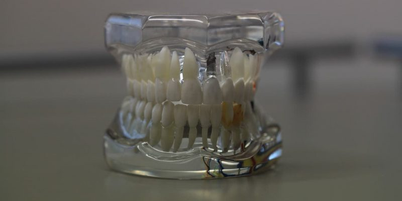 שיניים תותבות עם שקוף