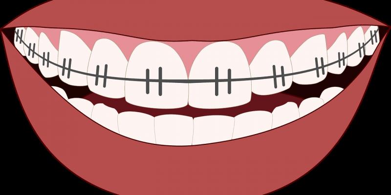 יישור שיניים עליונות
